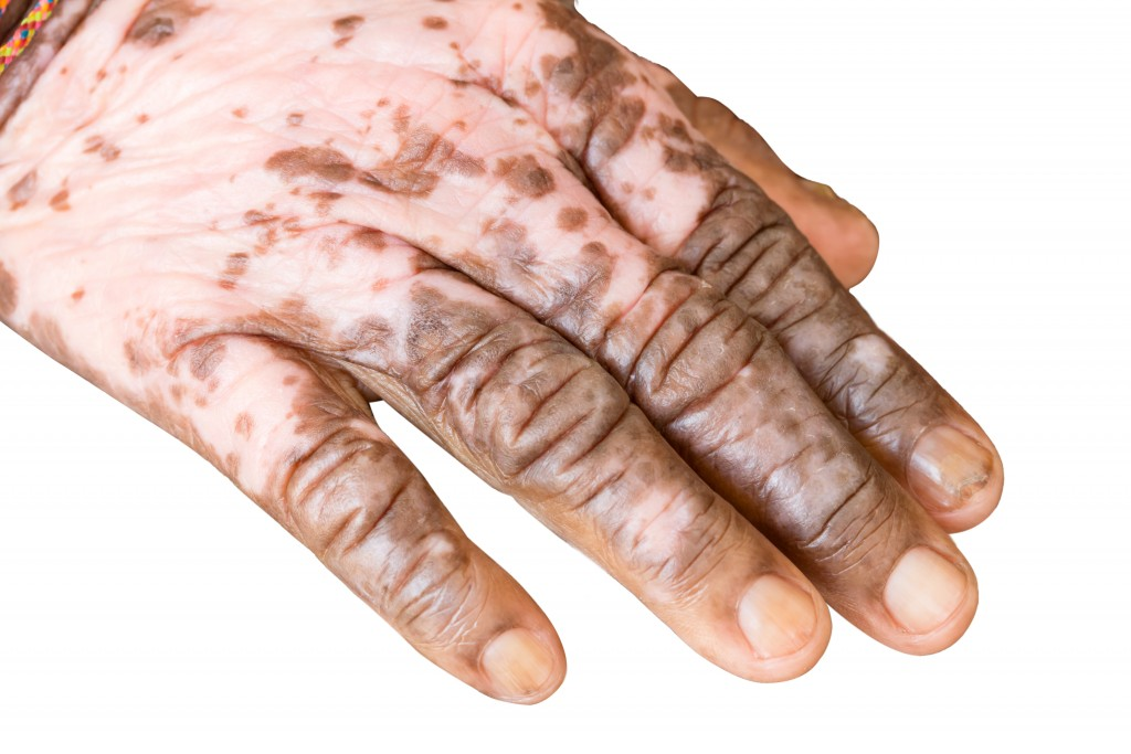 Hands affected with autoimmune disease