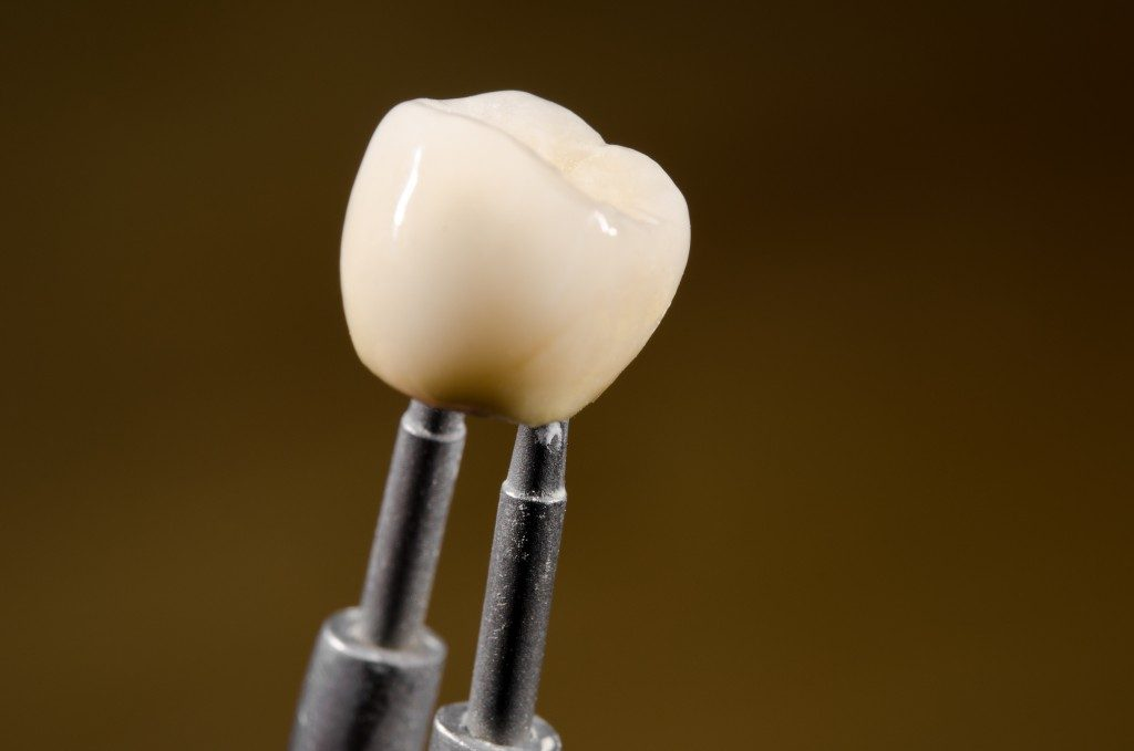 Dental crown on tweezers