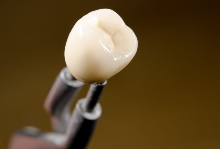 tooth for implant