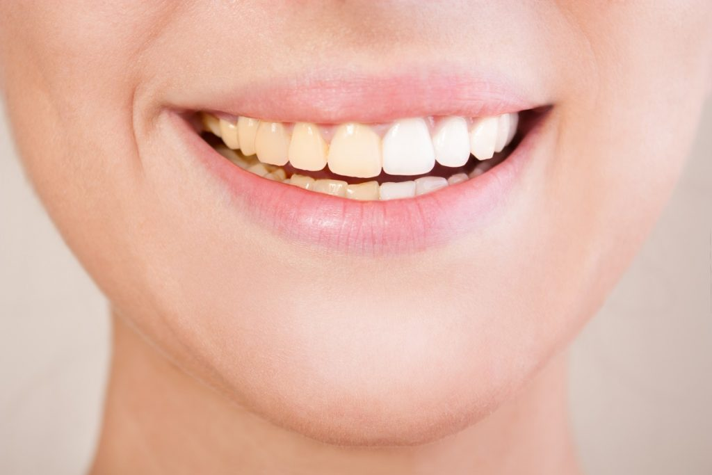 woman's complete set of white teeth