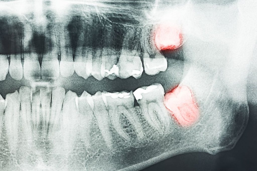 x-ray mouth
