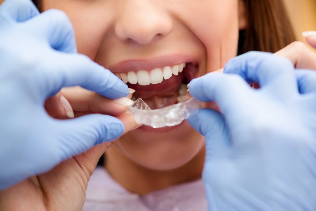 patient getting fitted with braces